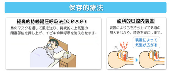 睡眠時無呼吸症候群(SAS)の治療